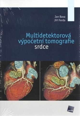 Multidetektorová výpočetní tomografie srdce