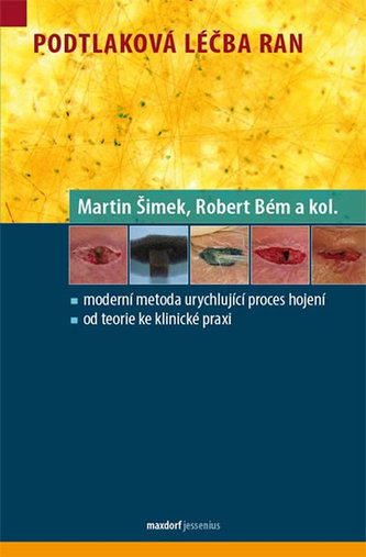 Podtlaková léčba ran - Martin Šimek; Robert Bém
