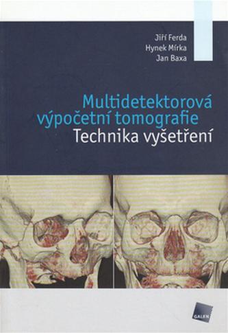 Multidetektorová výpočetní tomografie - Hynek Mírka