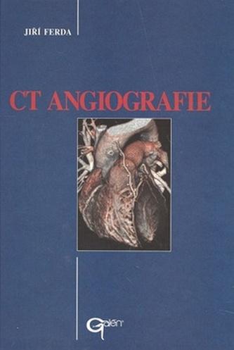 CT Angiografie - Jiří Ferda